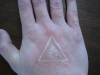 lasered-hand.jpg